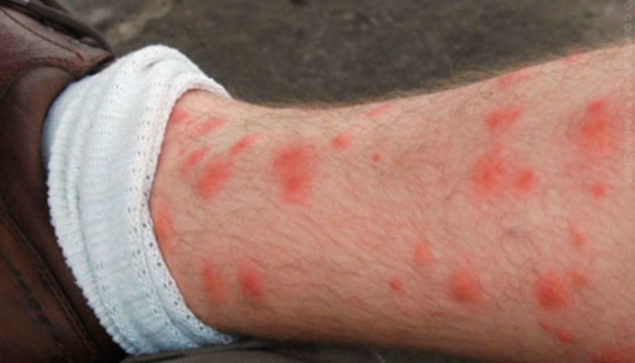How to get rid of Chiggers and their Bites